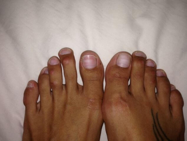 saisina-kaju-pirkstus02