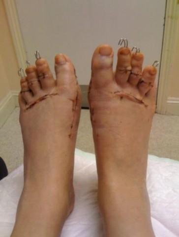 Danielas kājas uzreiz pēc operācijas: pēdās ievietoti iztaisnojoši metāla stieņi, kā arī  pirksti saīsināti.