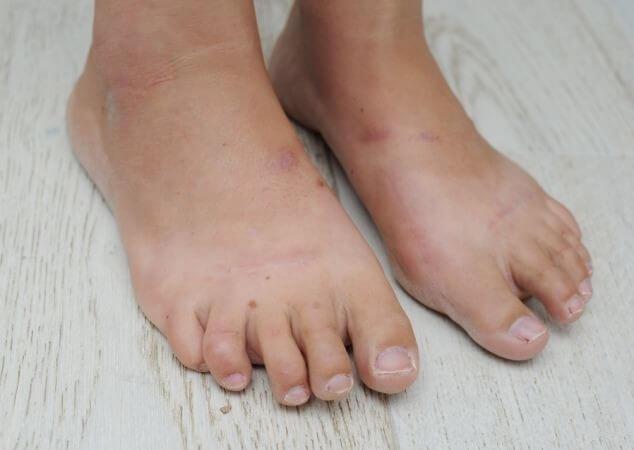 Pēc tam, kad metāla stieņi no pēdām tika izņemti, sieviete uzreiz, tiklīdz pielika pēdu pie zemes, no sāpēm zaudēja samaņu. Lieki teikt, ka paiet viņa nevarēja. Veselu gadu Daniela bija spiesta valkāt lielāka izmēra apavus. Operācijas rezultātā viņas kāju pirksti vairs neskāra grīdu, turklāt bija sašķiebušies katrs uz savu pusi. It kā ar to vēl būtu par maz, pirksti bija kļuvuši stīvi un nelocījās. Nu Daniela vispār vairs nekad nespēs valkāt augstpapēžu kurpes.