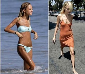 anoreksijas-upuri-00